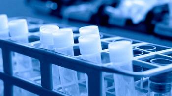 Medical Lab - test tubes - side track
