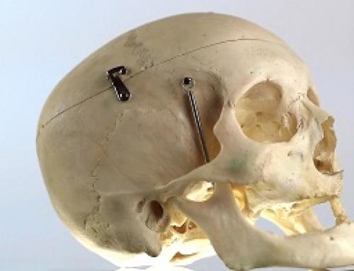 Skull – Medical Equipment – Bright