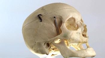 Skull - medical equipment - bright
